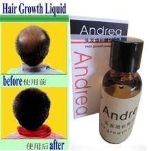 Andrea Hair Growth anti