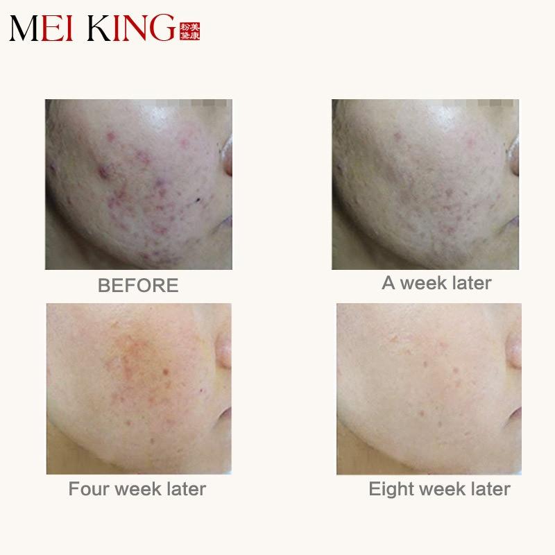 MEIKING Asam Hyaluronic Krim Wajah Jerawat Bekas Luka Krim Menghapus - Perawatan kulit - Foto 2