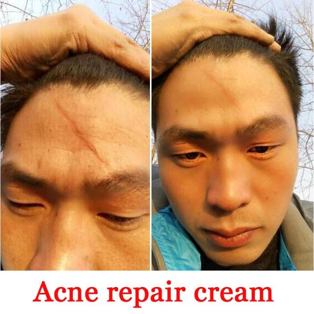 Facial Scar Remover