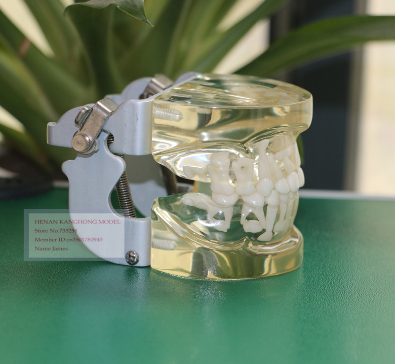 Transparent Milk Teeth Alternating Model,Children's Teeth Growth Model,Model 5 to 9 Years Old Children's Teeth молочко barex milk developer 9
