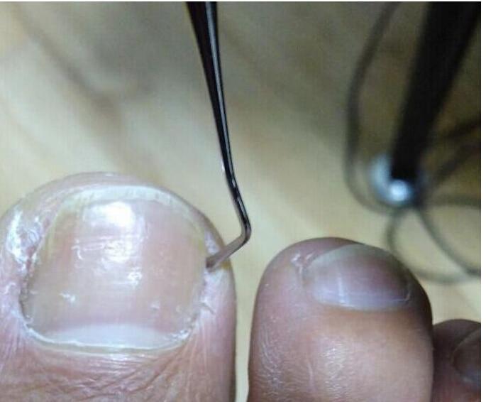 Awesome Ingrown Toe Nail Tool Embellishment - Nail Art Design Ideas ...