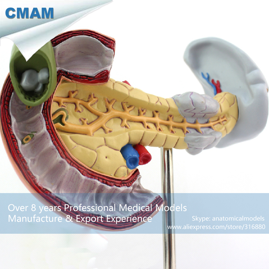 12542 CMAM-VISCERA05 Human Pancreas, Spleen Pathological Diseases Model,  Medical Science Educational Teaching Anatomical Models 12472 cmam anatomy34 human female pelvis model with removable infant medical science educational teaching anatomical models
