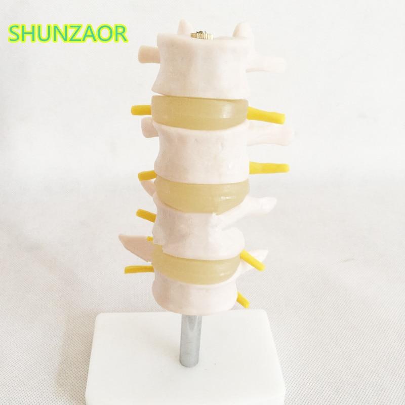 SHUNZAOR 16*9*8cm Lumbar Set (4 pcs) lumbar disc herniation demonstration model,Human lumbar spinal model