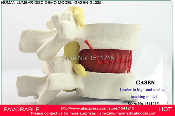 HUMAN LUMBAR DISC HERNIATION DEMO MODEL LUMBAR MODEL ORTHOPEDICS SPINE HUMAN ORTHOPAEDICLUMBAR SPINE MODEL MODEL GASEN-GL035 spine orthopedics human anatomy medicine demonstration model of human lumbar disc disease gasencx 0024