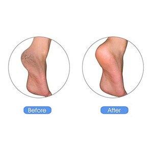 Image 3 - Натуральная пемза камень для ног чистый камень для шлифовки кожи мозоли Уход за ногами массажный инструмент для очистки омертвевшей твердой кожи уход за кожей