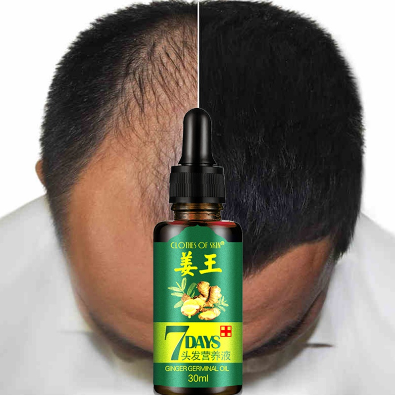 Купить с кэшбэком 2/3/4pcs Dropshipping 30ml Hair Growth Ginger Serum Essence Oils Anti Hair Loss Liquid Damaged Hair Care Repair Growing Cares