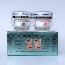 wholesale 2014 New Arrival FEIQUE cordyceps sinensis whitening anti freckle cream 20g+20g facial 50 sets/lot