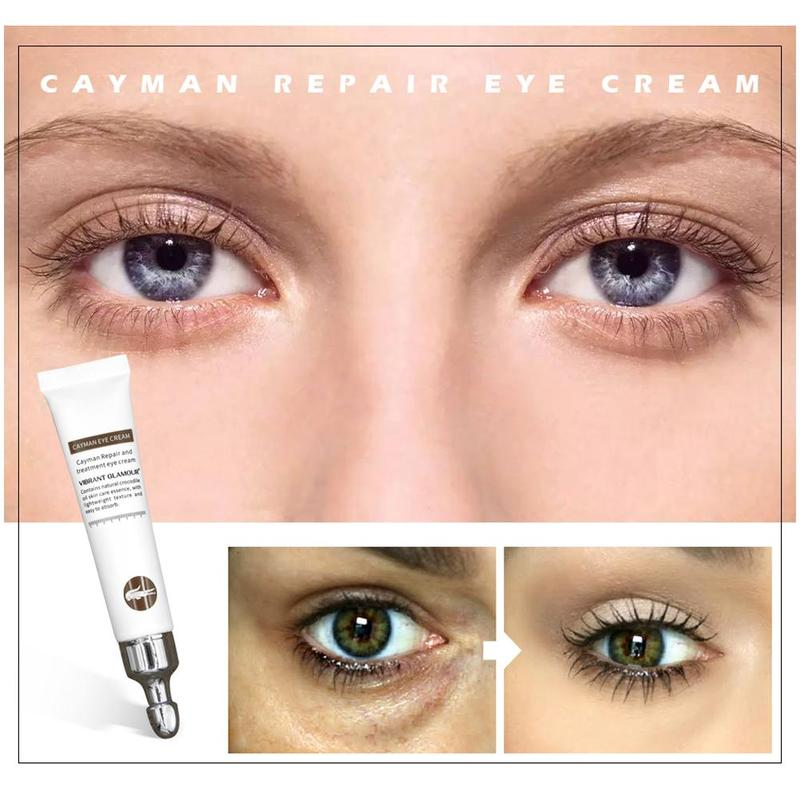Remover Dark Circles Against Puffiness Cream Anti-wrinkle Age Eye Cream Hyaluronic Acid Eye Serum