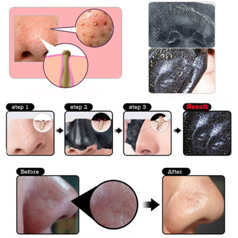 5 uds máscaras negras purificador de limpieza profunda Peel Off Black Head Mask,Close Pore,Face Mask Blackhead Remover Pore Strips Face Care