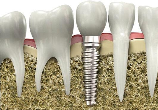 一個牙醫的良心忠告