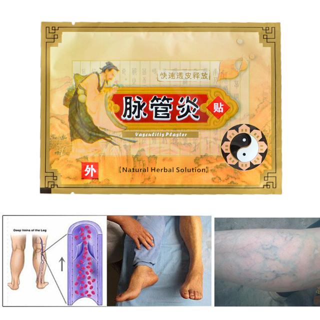 10pieces Varicose Veins plaster arm leg spider veins cream pain relief