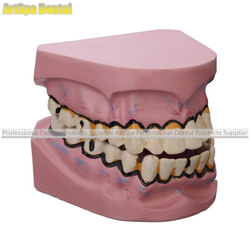 Dental Implant Disease Teeth Model Smoking Decay Caries Tooth Model Denture For Dentist Medical Science Teaching Study high quality new arrival dental implant demonstration bracket simulation caries teeth model teeth removable dentist