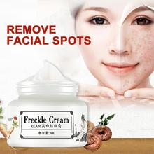 Strong effect whitening Cream 30g Remove Freckle melasma Acne Spots Pigment Mela
