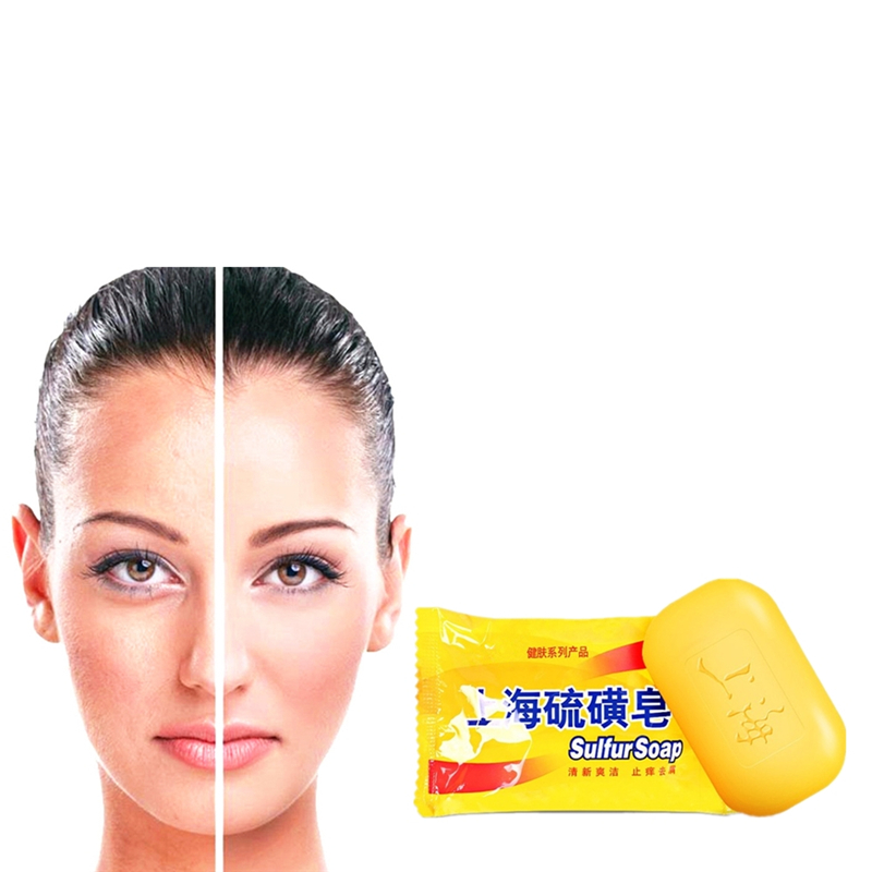 Cheapest New 1PCS Sulfur Soap Treat Itching Acne Psoriasis Mite Dermatitis Anti Fungus Anti-inflammatory
