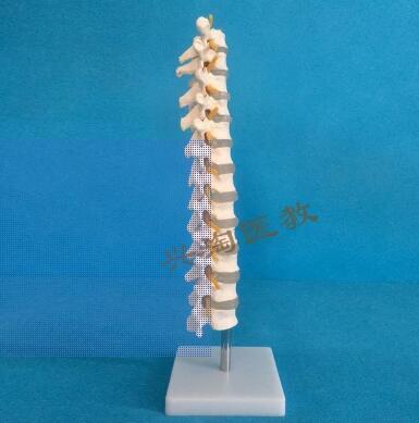 Model of thoracic vertebra: vertebral disc of thoracic vertebra and human thoracic vertebra enovo model of thoracic and thoracic surgery in the lung section of the medical human lung section