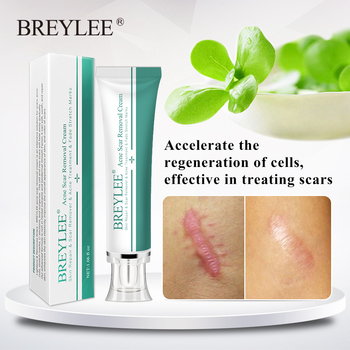 BREYLEE Acne Scar Removal Cream 30g Face Cream Skin Repair Skin Care Scar Acne Treatment Remove