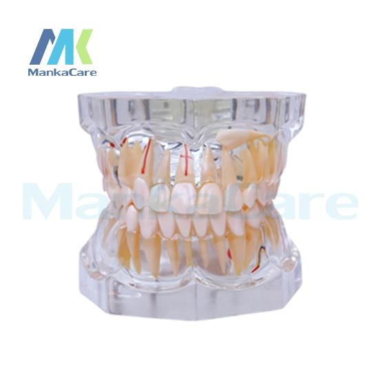 Manka Care - 2.5 Times Pathology Oral Model Teeth Tooth Model pro teeth whitening oral irrigator electric teeth cleaning machine irrigador dental water flosser teeth care tools m2