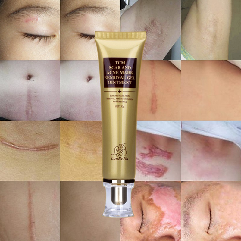 Lanbena Stretch Marks Remove Acne Treatment Face Whitening Pimple Scar Pregnancy TCM SCAR AND ACNE MARK REMOVAL GEL 30g