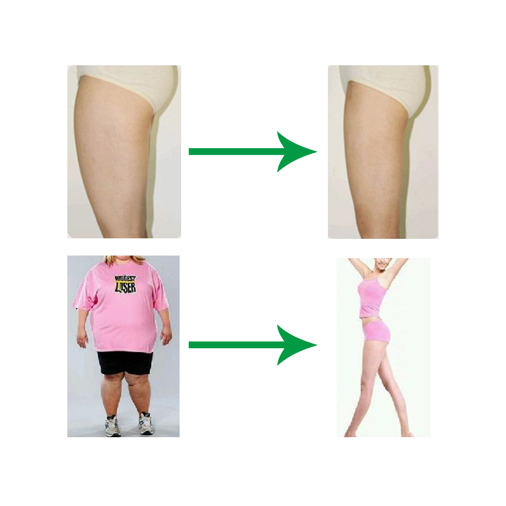 50pcs Soso Slimming or diet Navel Patch weight loss patch cream Chinese medical herbal plaster Burn Calories Decompose body fat