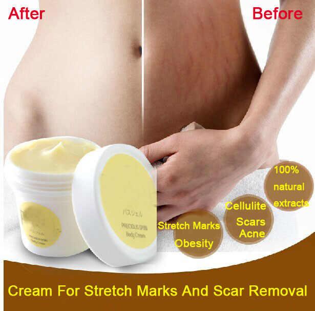 Драгоценные крем для беременных стетч Remover Sar удаления мощный Postpartm ожирения крем для лица и тела