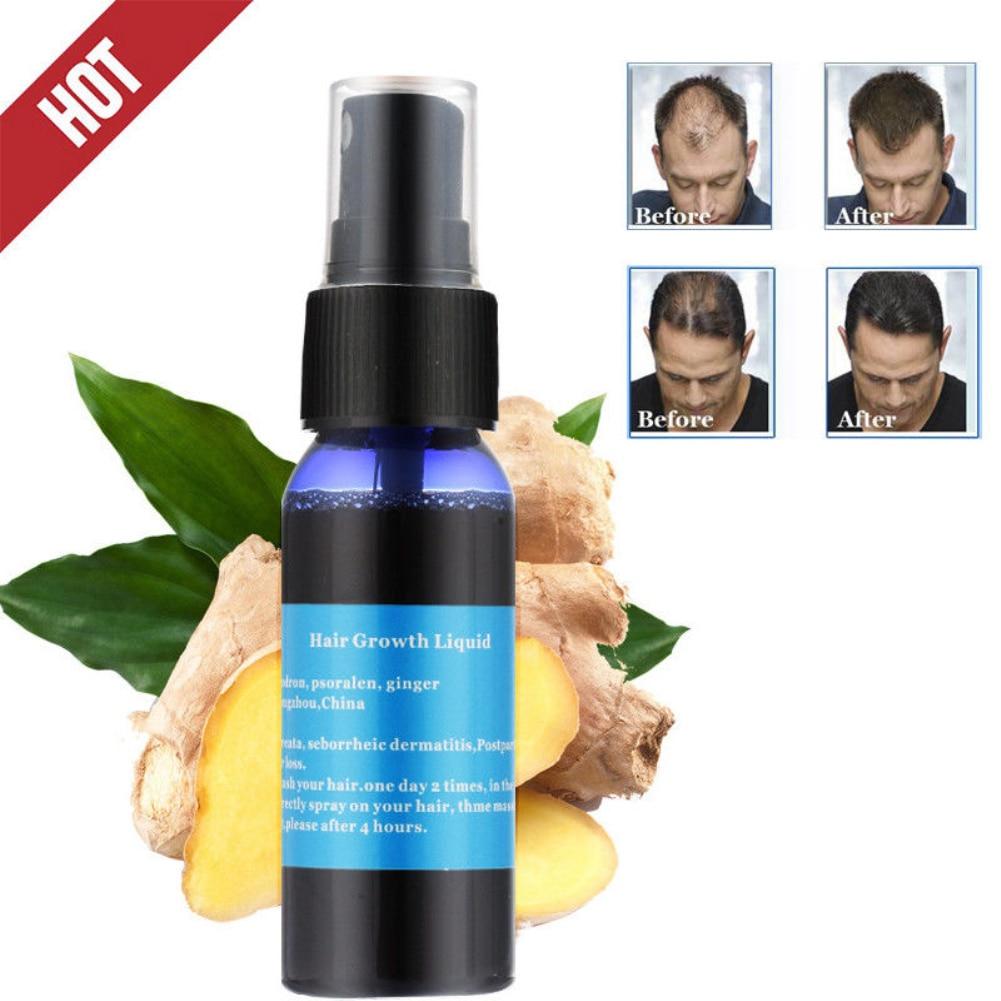 30ML Professional Hair Growth Essence Hair Loss Liquid Natural Pure Essential Oils Dense Hair Growth Serum Hair Care TSLM2