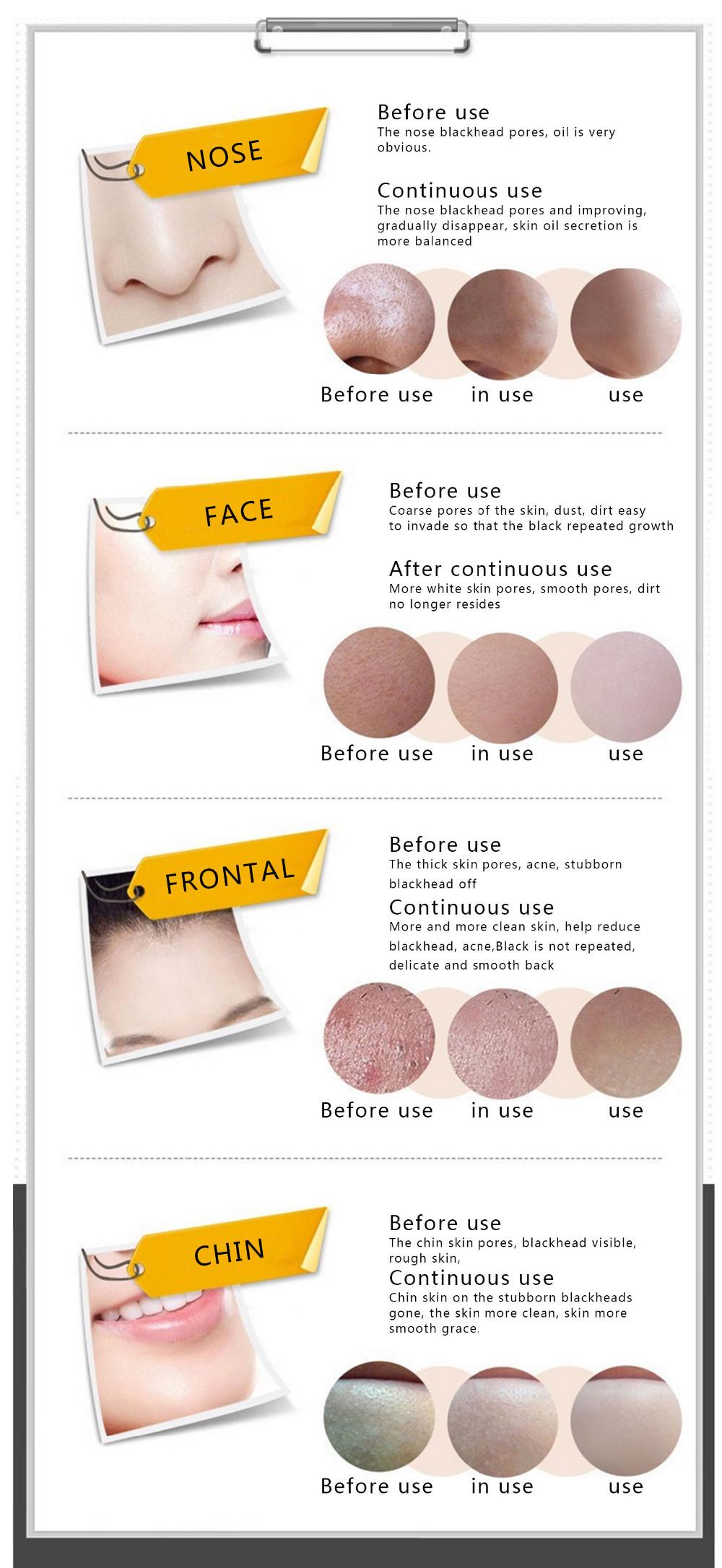 100pcs/lot PILATEN Black Mask Acne Blackhead Mask Peel Off Black Head Remover Face Mask Beauty Deep Cleansing Skin Care 11