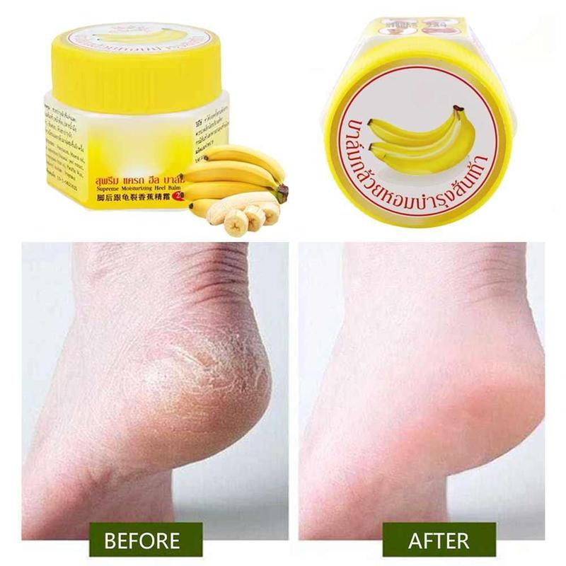 New Cracked Heel Cream For Rough Dry Cracked Chapped Feet Remove Dead Skin Soften Foot Cracked Heal Repair Cream Foot Care