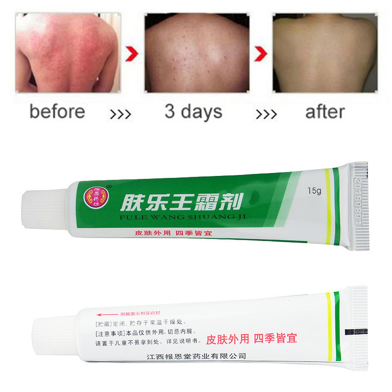 10Pcs FULEWANG Skin Psoriasis Cream Without Box Plaster Dermatitis Eczematoid Eczema Ointment Treatment Psoriasis Cream 15g