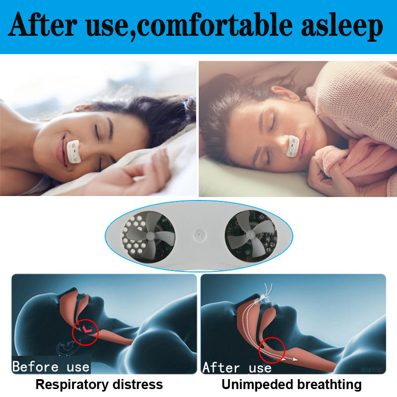 CPAP nose stop breathing (4)