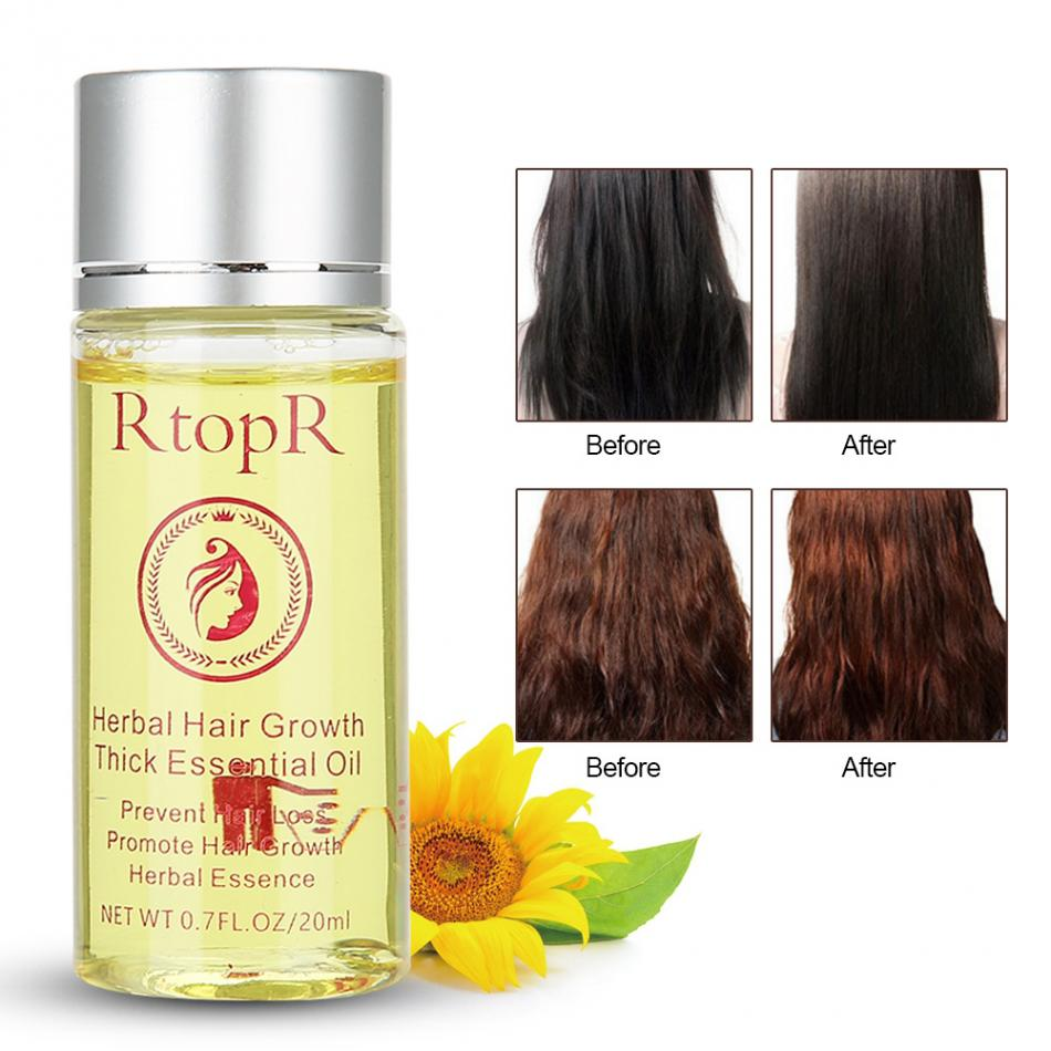 20ml RtopR Herbal Oil Treatment Renewing Penetrating Essential Product For All H