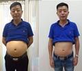 Produtos da perda de peso patch de emagrecimento queimar gordura minceur gordura dieet parches adelgazantes afvallen slim patch para emagrecimento
