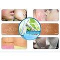 Lanbena Nuobisong Cuidados de Rosto Anti Acne Creme de Tratamento Da Cicatriz Estrias Remoção de Manchas de Acne Pele Oleosa Rosto Cuidados Com A Pele Maquiagem