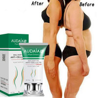 Weight Loss Diet Pills Weight Loss Slim Capsules Potent Effect Lose Weight Creams Thin Leg Waist
