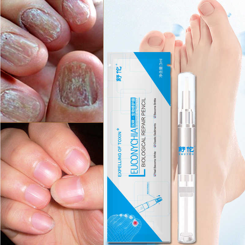 Detail Feedback Questions about 1PCS Toenail Fungus Treatment ...