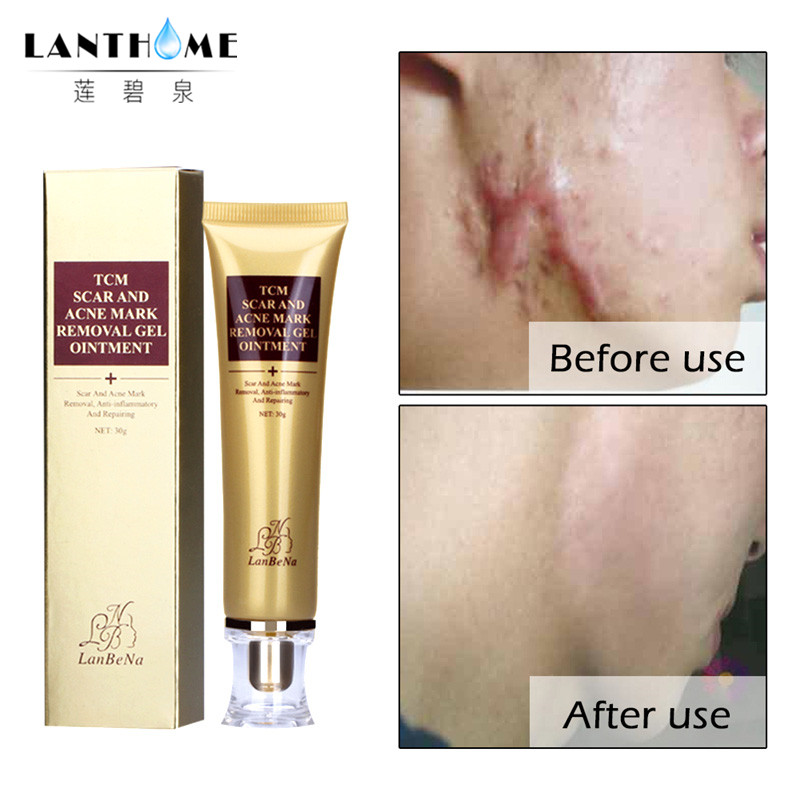 LANBENA Acne Scar Stretch Marks Remover Cream Skin Repair Face Cream Acne Spots Acne Treatment Blackhead Whitening Cream 30ml vietnam ginger anti acne ointment pimple scar cream acnes treatment remove acne scar repair skin face skin care