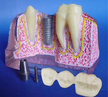 Four Times The Magnification Transparent Dental Implant Model,Tooth Model,Dental Implant Practice Model