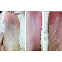 8pcs=4bag Exfoliating Tendering feet mask sox remove dead skin as beauty foot care product