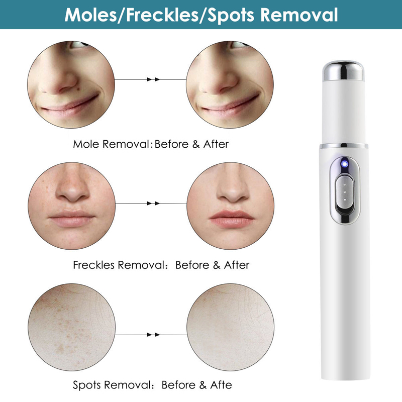 Image 5 - Medical Electronic  Blue Light Therapy Laser Treatment Pen Spots Laser Ance Wrinkle Acne Removal EMS Blu ray-in Face Skin Care Tools from Beauty & Health
