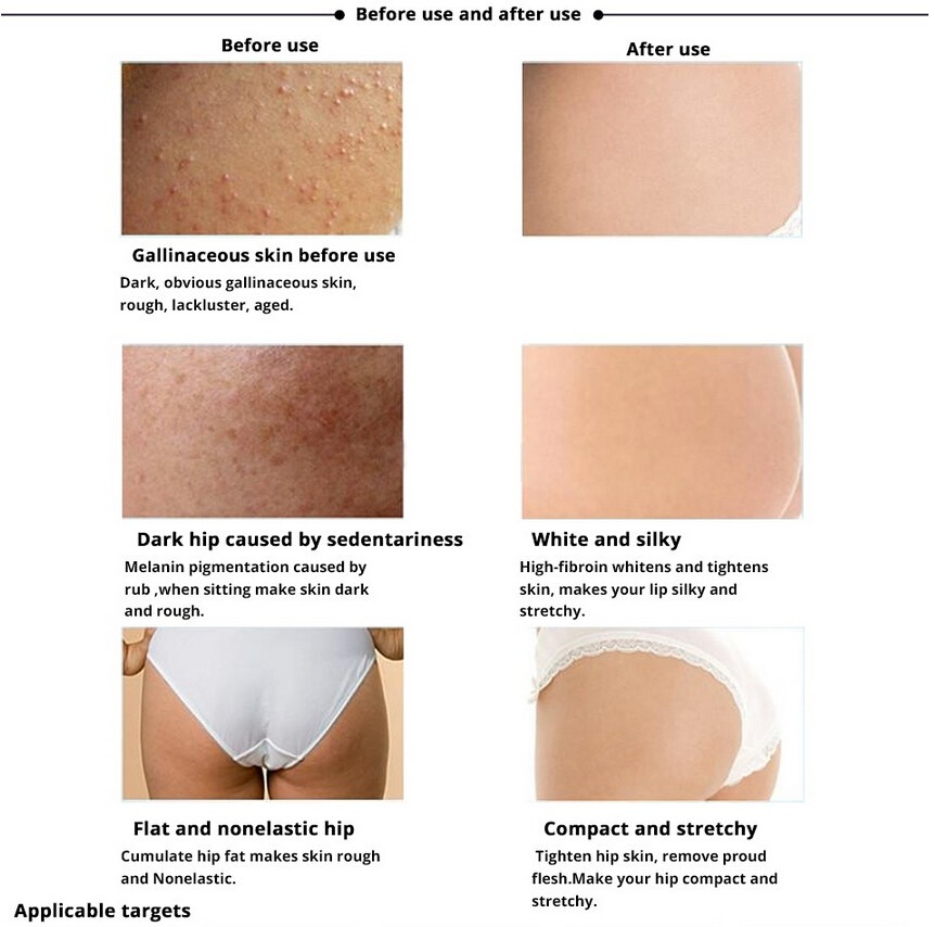 100-Natural-Hip-Lift-UP-Cream-Fast-Bigger-Lady-Butt-Plump-Ass-Enhancer-Enlargement-200g-Body (4)