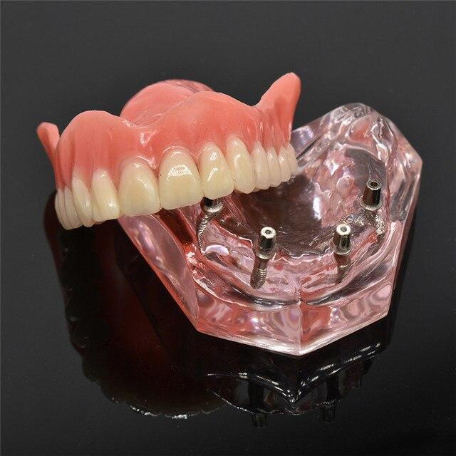 歯科インプラント歯モデルリムーバブルインテリアデザイン下顎下の歯モデルのためのインプラントで下顎歯教育研究