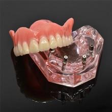 Modelo mandibular de interior, modelo mandibular mandibular de dentes com implante para estudo de ensino dental