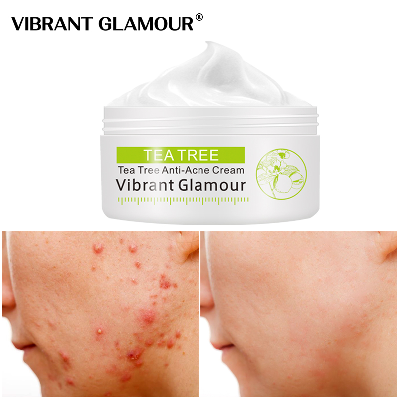 VIBRANT GLAMOUR Tea Tree Anti-Acne Face Cream Oil Control Shrink Pores Acne Cream Nourish Whitening Acne Scar Remove Skin Care 2