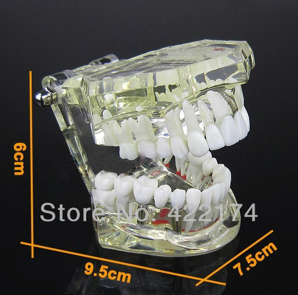 Free Shipping Implant model with restoration dental tooth teeth dentist anatomical anatomy model odontologia купить