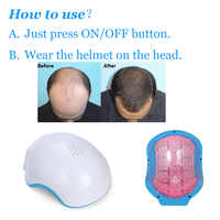 COZINGLaser Helmet 80pas laserMedical Diodes Treatment Hair Loss Solution Hair Fast Regrowth Laser Caphair caps for women hair