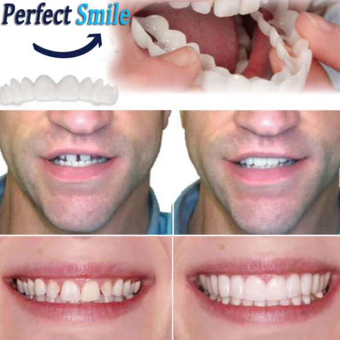 5pcs Fit Dentes White Cover Denture Teeth Top Cosmetic bleaching Yellow Teeth Whitening Temporary Smile Comfort-in Teeth Whitening from Beauty & Health