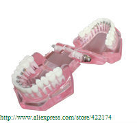 Free Shipping Model with inside bracket dental tooth teeth dentist dentistry anatomical anatomy model odontologia
