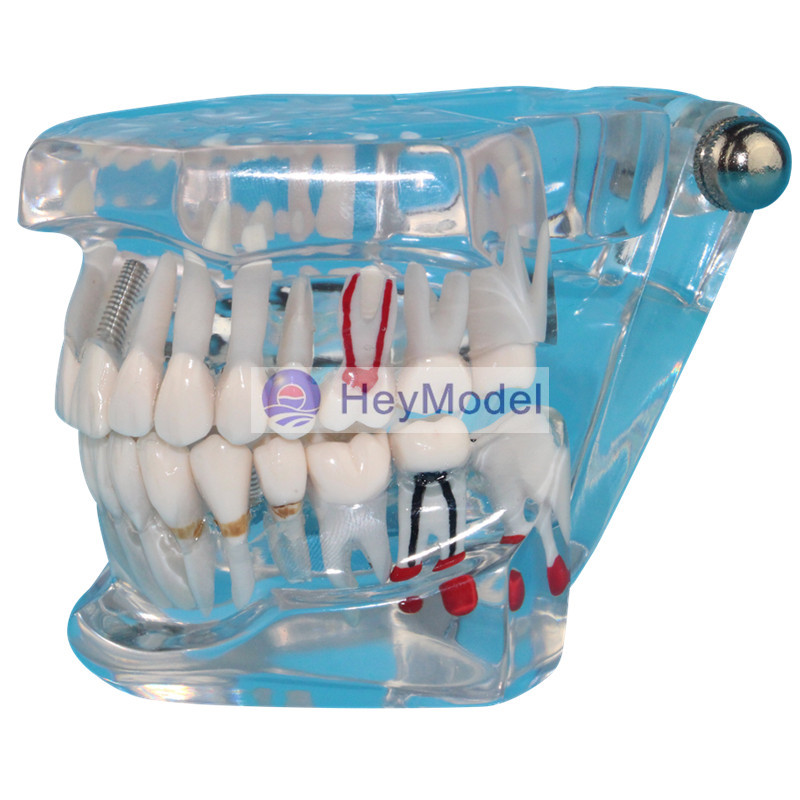 HeyModel Transparent Teeth Repair Model Real Size 1:1