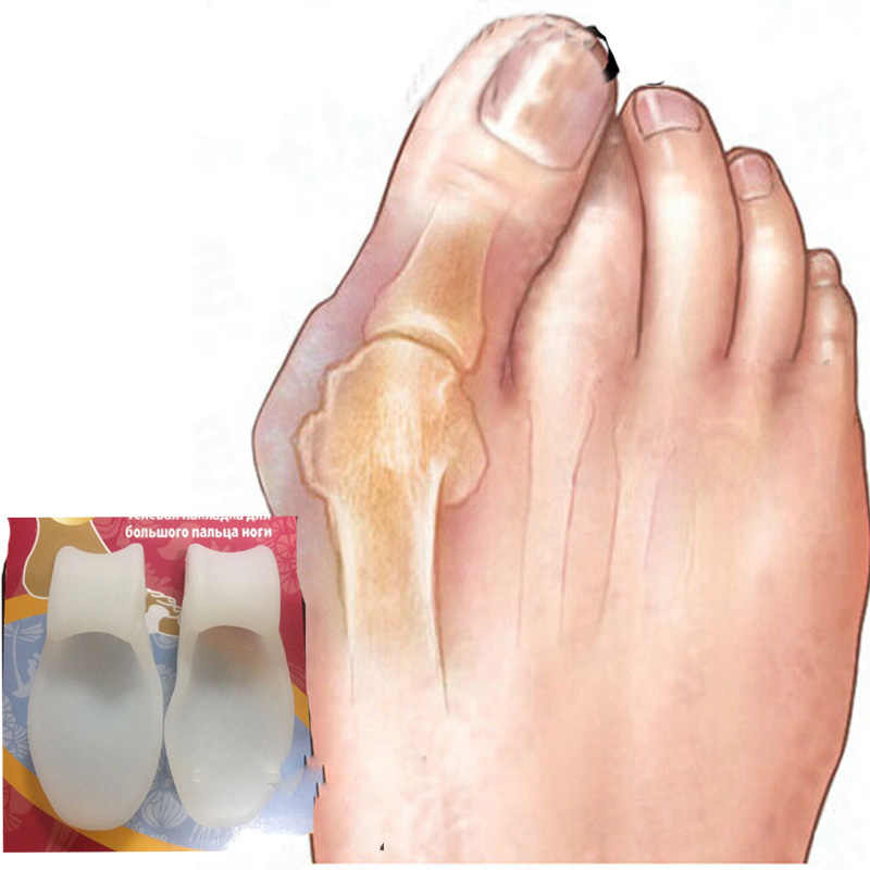 Bộ 2 Gel Silicone Bunion Corrector Ngón chân cái Phân Cách Cực Đầm Xòe Chăm Sóc Bàn Chân Giảm Đau Hallux Valgus Pro Máy Mát Xa