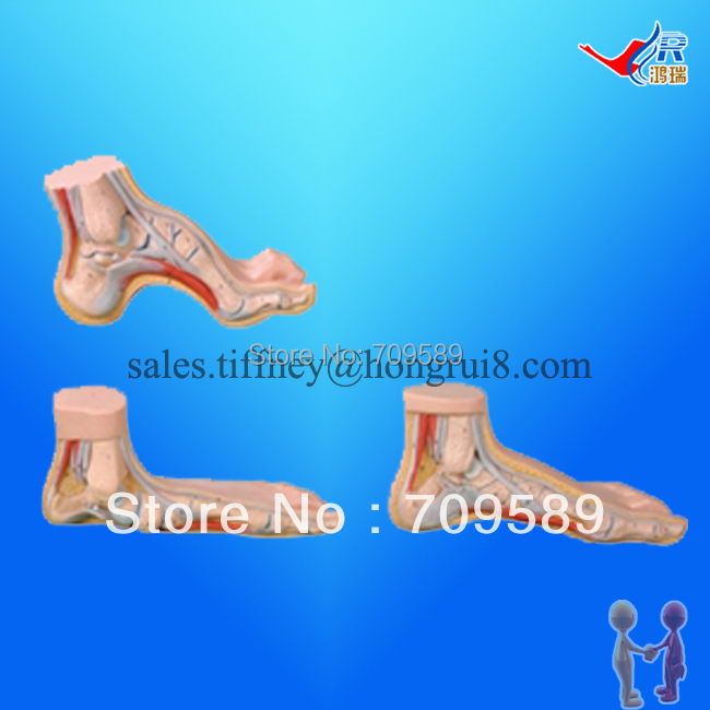 ISO Arched Foot, Flat Foot and Normal Foot Model, Anatomical Foot Model normal foot flat feet bow foot foot combined anatomical model
