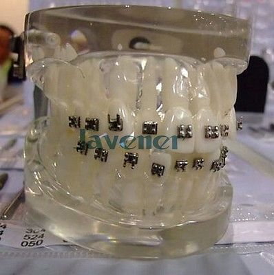 Dental Oral Orthodontic Arch Wire Teaching Model Practice Teaching Model 2016 dental orthodontics typodont teeth model half metal half ceramic brace typodont with arch wire